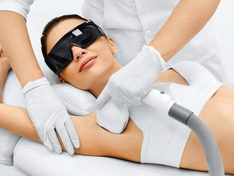 ¿Cuáles son las ventajas de la depilación láser?