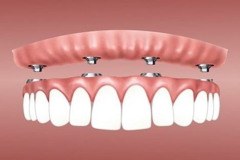 Descubre todo lo que hay que saber sobre los implantes dentales