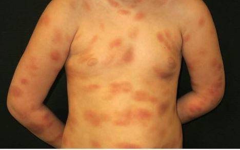 Mastocitosis: Un conjunto de enfermedades raras que afecta a 3.000 personas en España