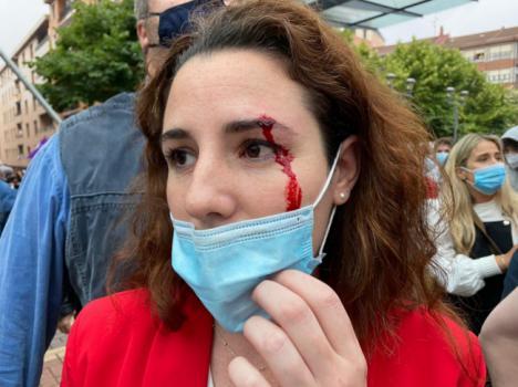 Diputada por Almeria de Vox resulta herida con una piedra en un mitin en Sestao
